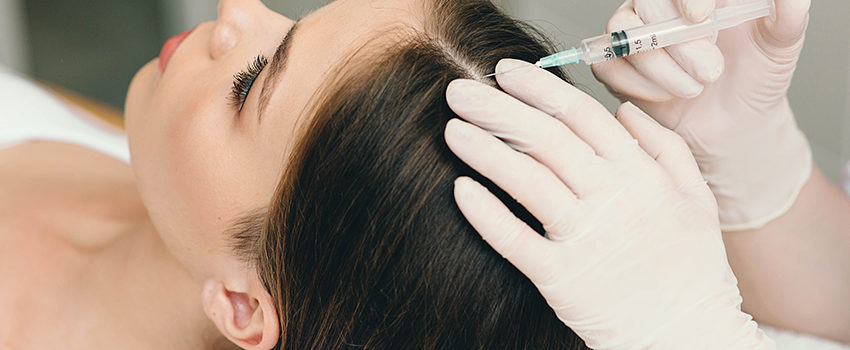 treatment of hair loss, injection for hair growth. Injected in woman's head, hair mesotherapy